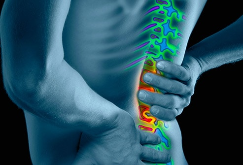493x335_low_back_pain_overview_slideshow (1)