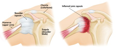 Everything You Need to Know About Frozen Shoulder