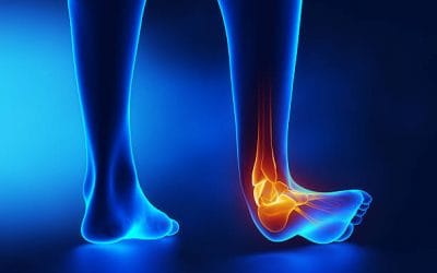 Ankle Sprains: Causes & Advice